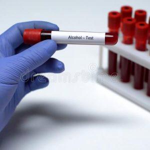 Enfermeiro Confessa Ter Extraído O Próprio Sangue Para Proteger Médico Em Teste De álcool Em Coimbra